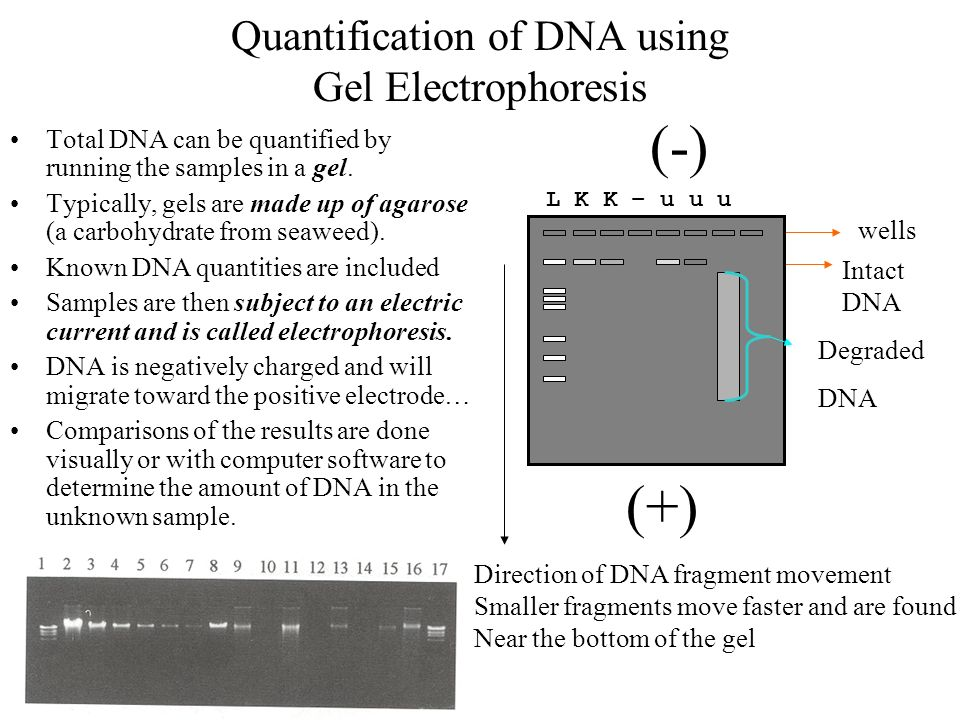 extraction of plasmid and gel electrophoresis Experiment title: extraction of bacteria plasmid dna and analysis of extracted dna samples objectives: 1) to study and understand the steps for extract bacteria plasmid.