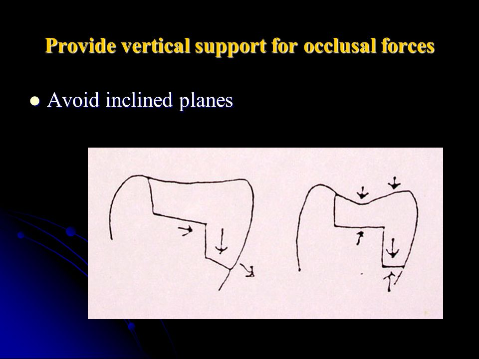 Provide vertical support for occlusal forces Avoid inclined planes Avoid inclined planes