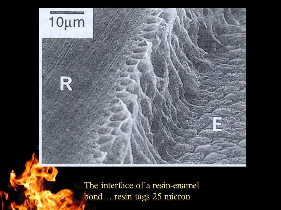 The interface of a resin-enamel bond….resin tags 25 micron