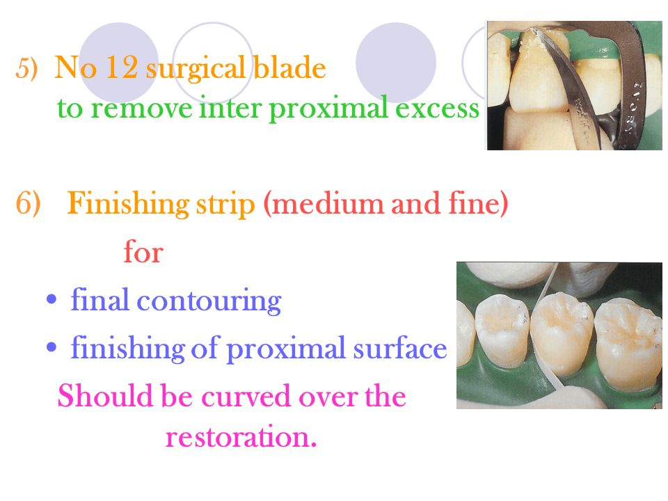 5) No 12 surgical blade to remove inter proximal excess 6) Finishing strip (medium and fine) for final contouring finishing of proximal surface Should be curved over the restoration.