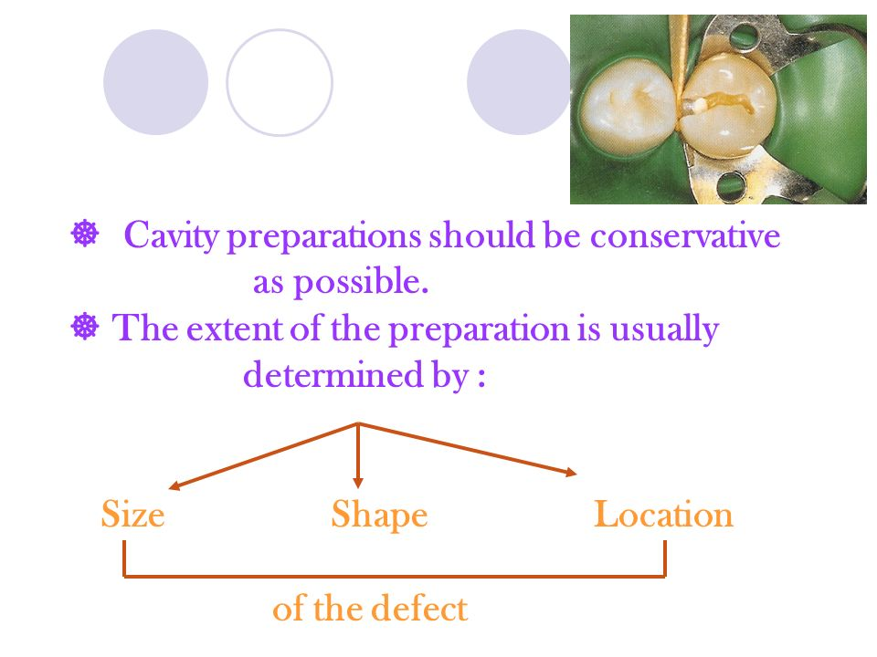  Cavity preparations should be conservative as possible.