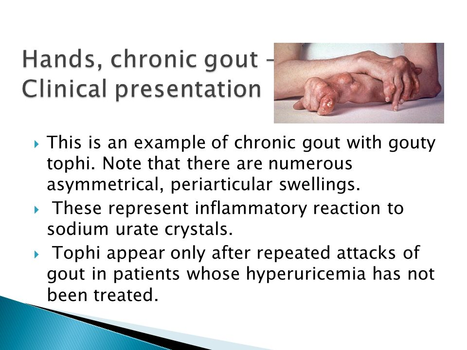 gout symptoms with normal uric acid levels acute gout treatment uk can you get gout in the back of your knee