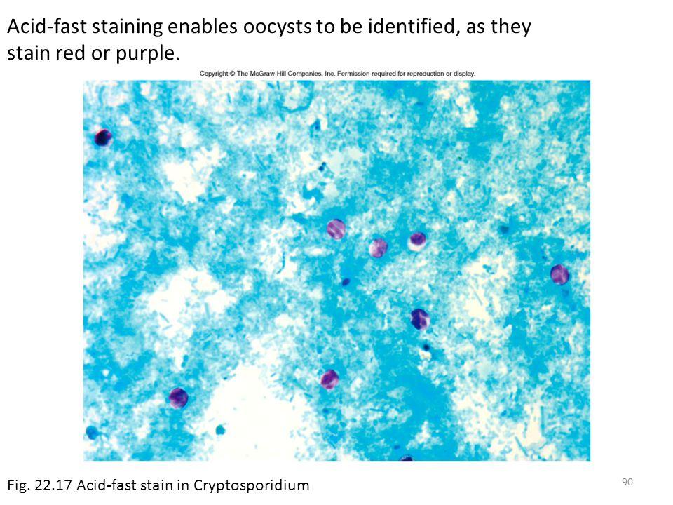 Acid fast staining of E coli  Answerscom