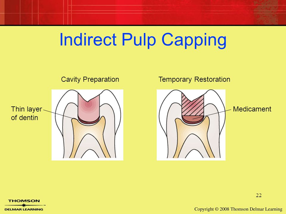indirect pulp cap