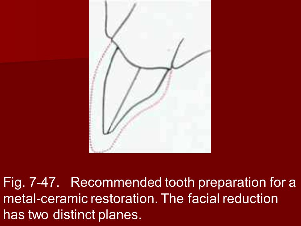 Fig. 7-47. Recommended tooth preparation for a metal-ceramic restoration.