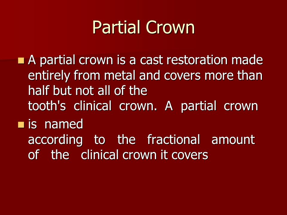 Partial Crown A partial crown is a cast restoration made entirely from metal and covers more than half but not all of the tooth s clinical crown.