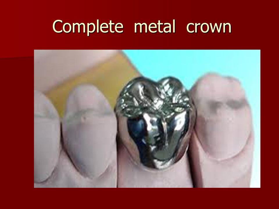 Complete metal crown Complete metal crown