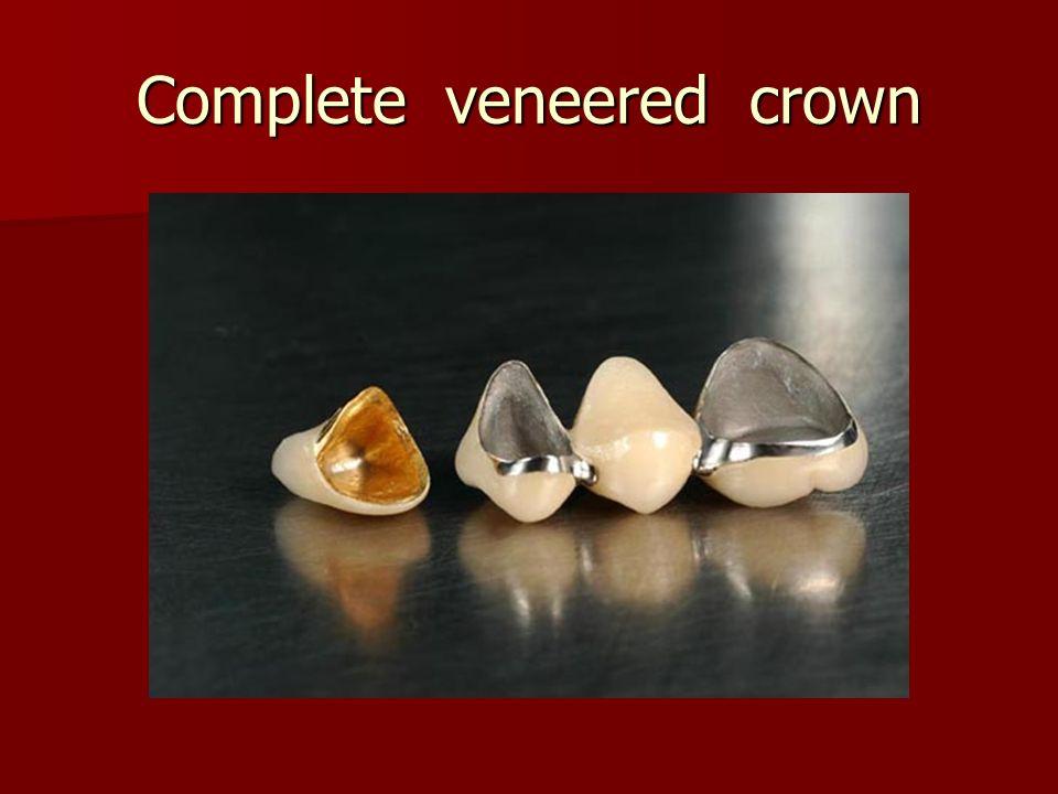 Complete veneered crown