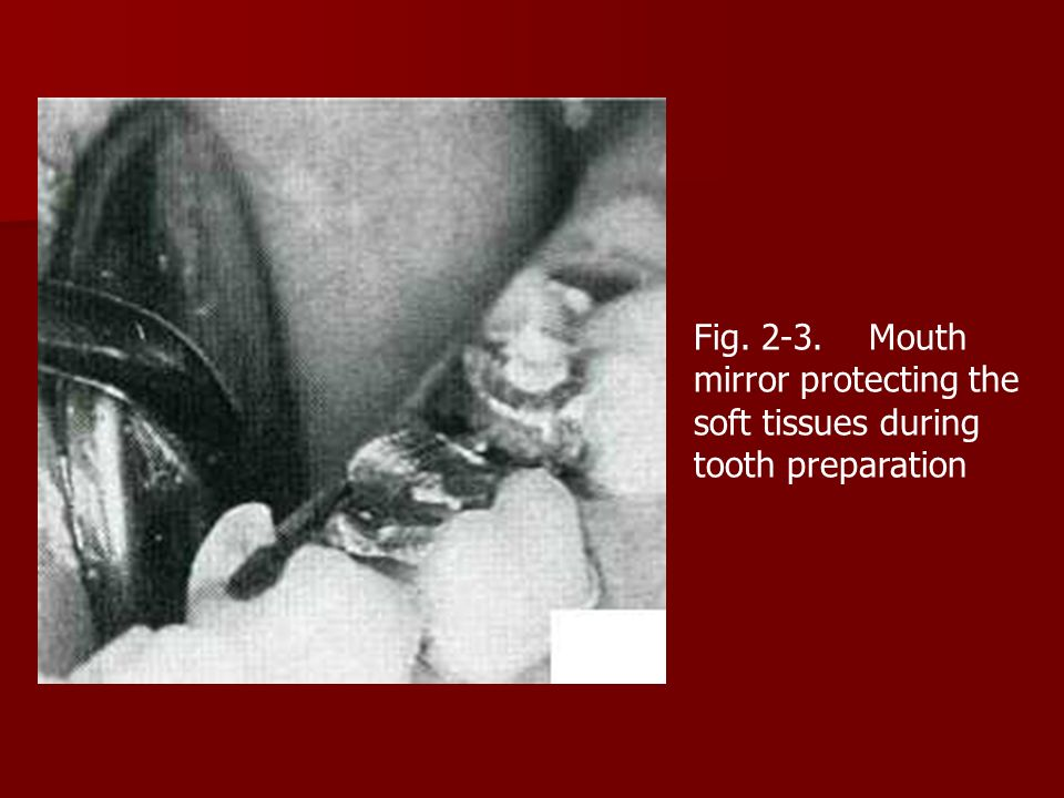 Fig. 2-3. Mouth mirror protecting the soft tissues during tooth preparation