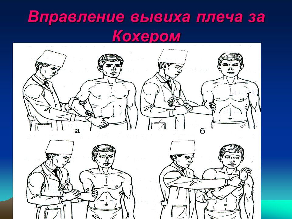 Как самостоятельно вправить сустав