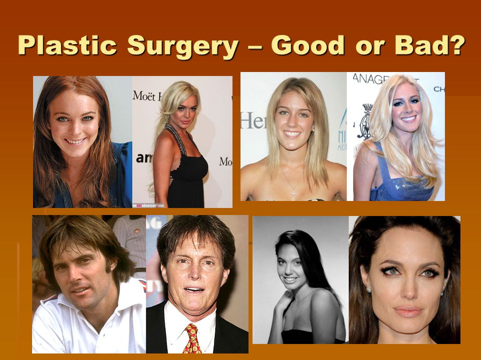 Plastic Surgery – Good or Bad?