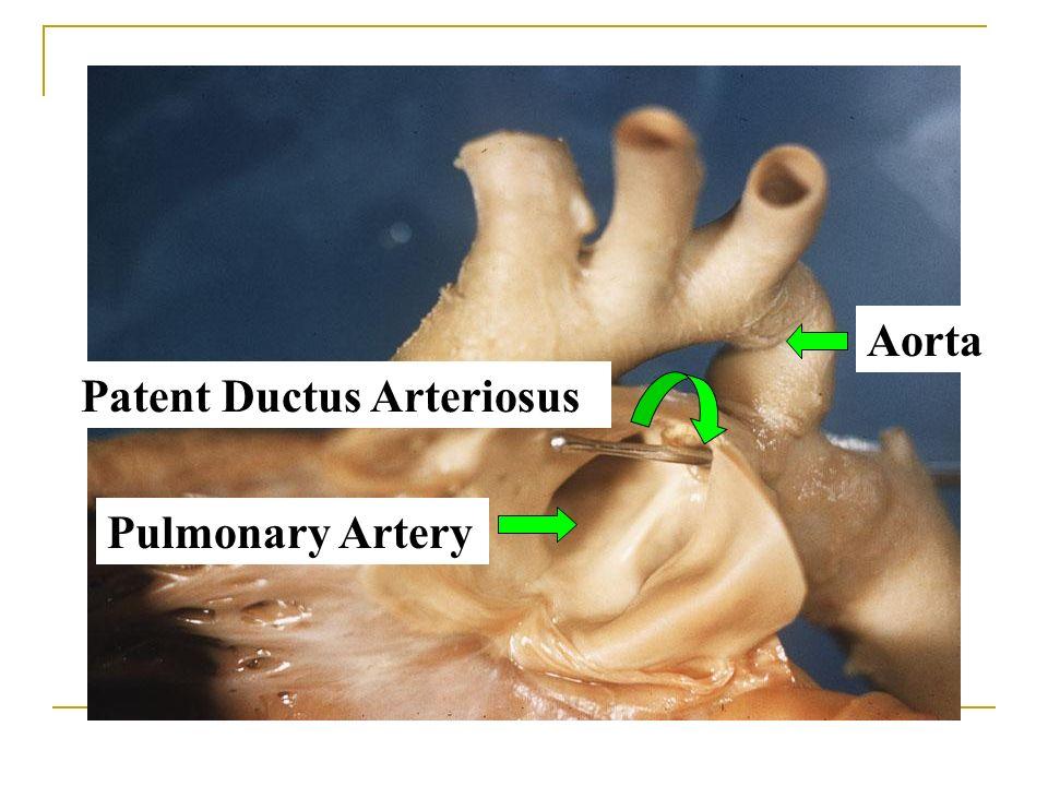 Pulmonary Artery Aorta Patent Ductus Arteriosus