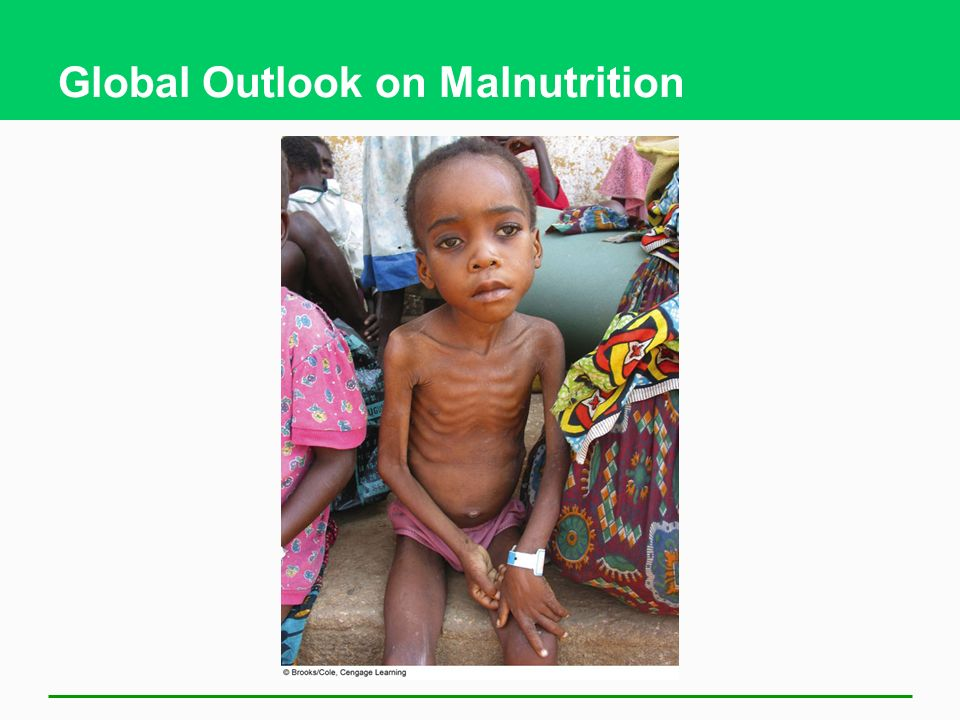 Global Outlook on Malnutrition
