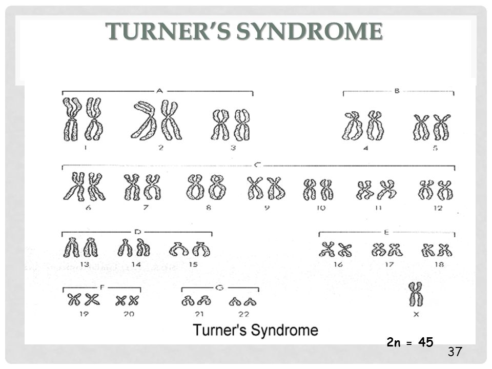 TURNER'S SYNDROME 37 2n = 45