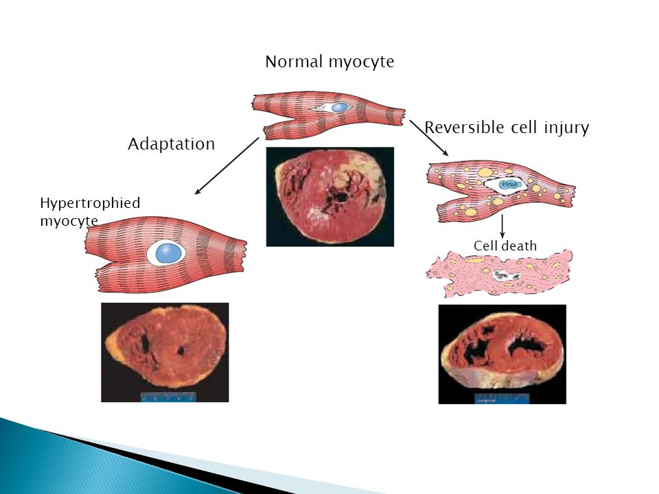 Normal myocyte Hypertrophied myocyte Adaptation Reversible cell injury Cell death
