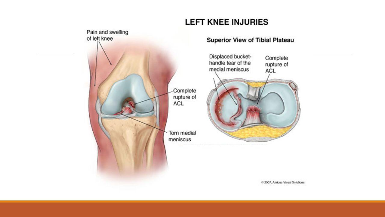 Anatomy Of Left Knee Images - human body anatomy