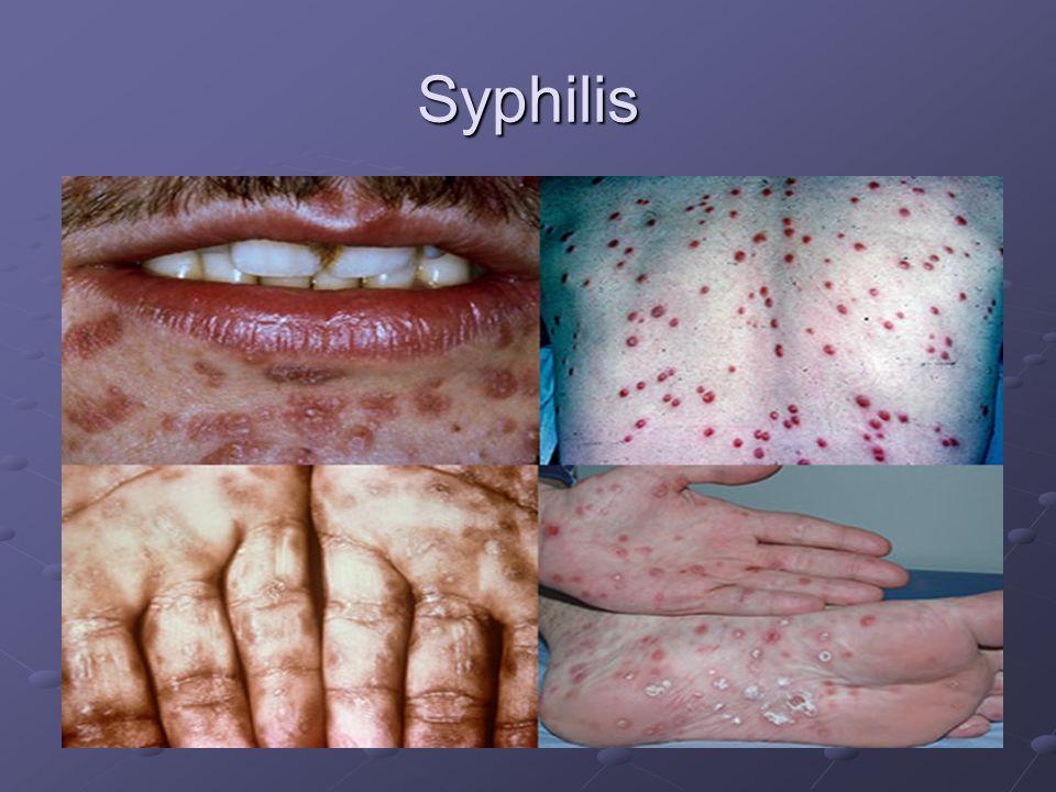 Syphilis