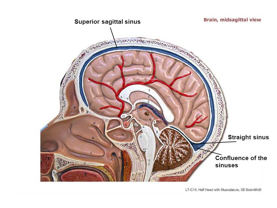 Superior sagittal sinus Straight sinus Confluence of the sinuses