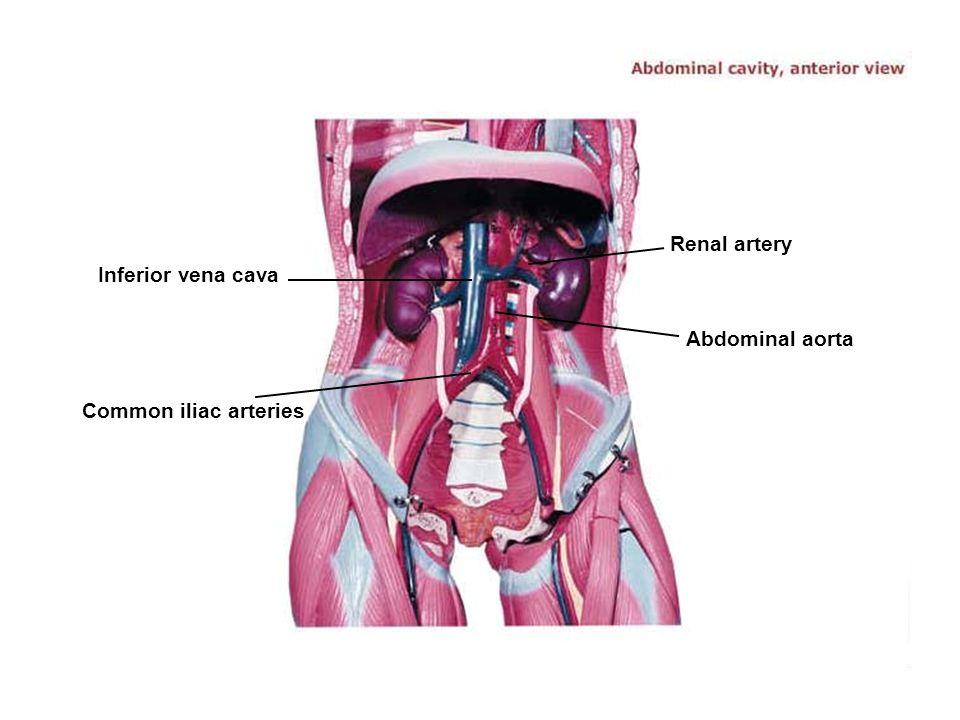 Common iliac arteries Inferior vena cava Renal artery Abdominal aorta