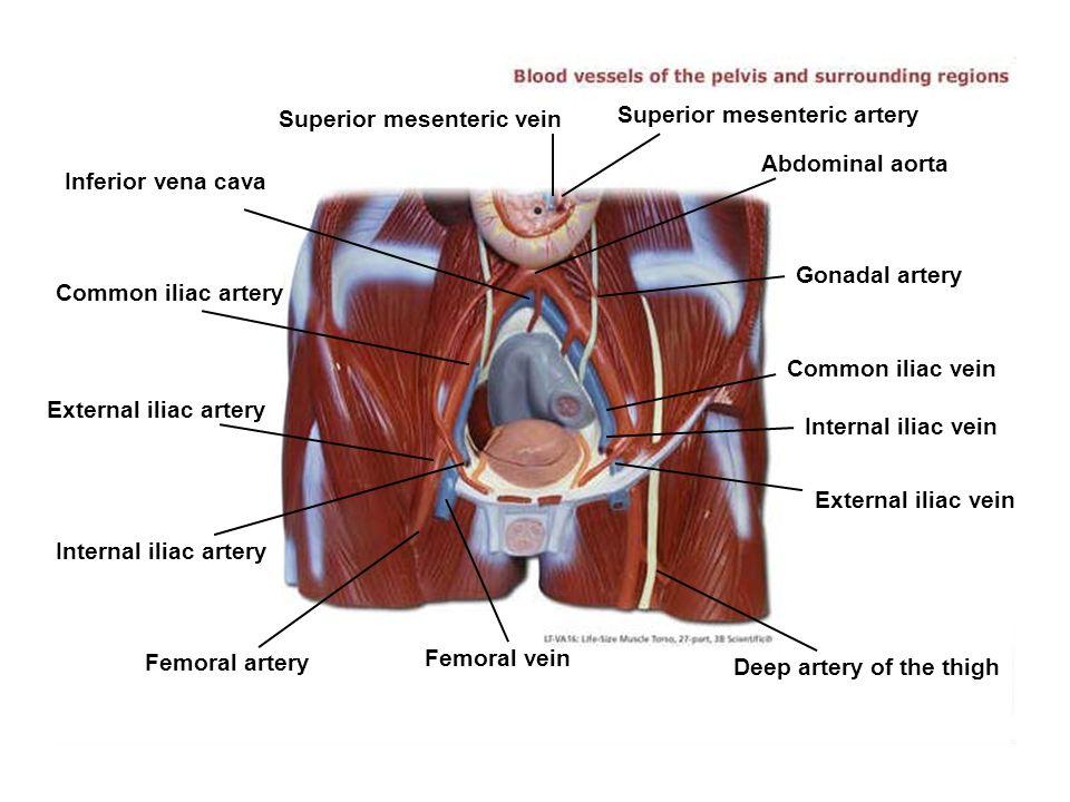 Femoral vein Femoral artery Internal iliac artery External iliac artery Common iliac artery Inferior vena cava Superior mesenteric vein Superior mesenteric artery Abdominal aorta Gonadal artery Common iliac vein Internal iliac vein External iliac vein Deep artery of the thigh