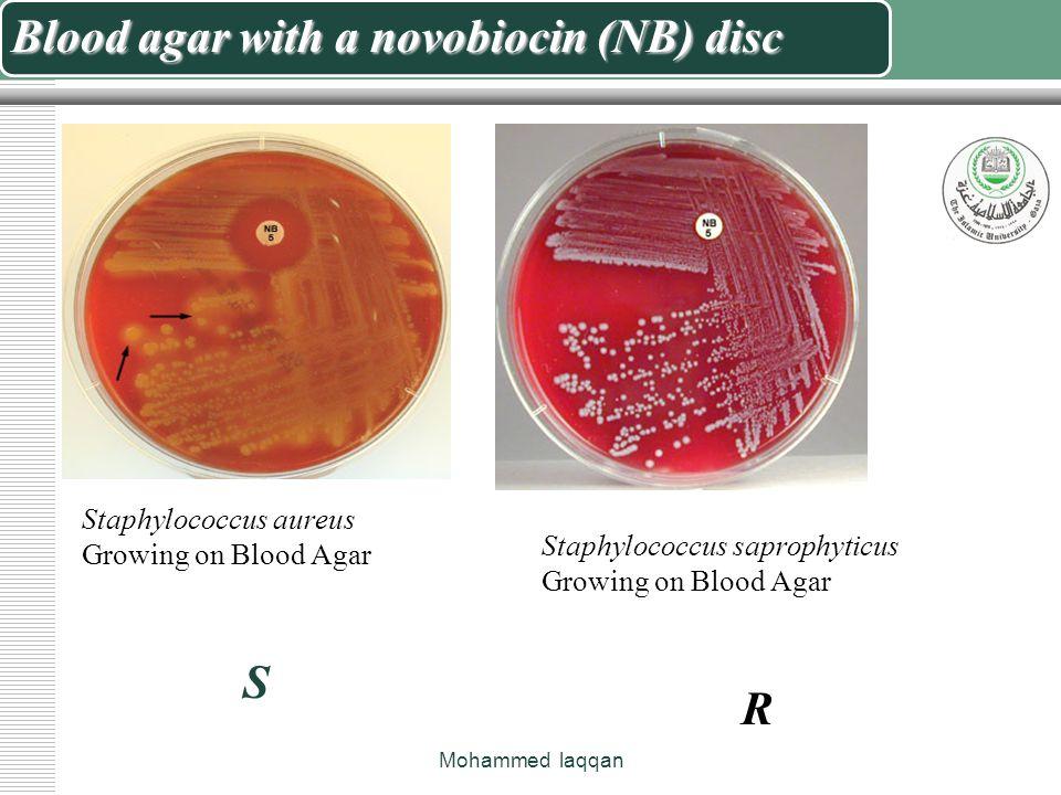 S Saprophyticus Novobiocin