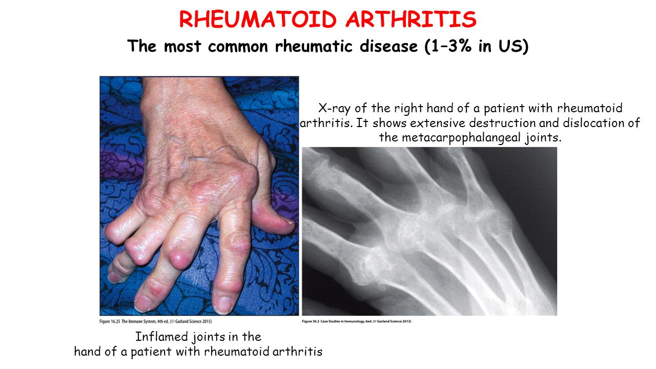 Inflamed joints in the hand of a patient with rheumatoid arthritis X-ray of the right hand of a patient with rheumatoid arthritis.