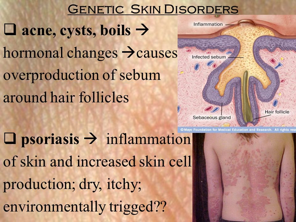 disease integumentary system Learn what the integumentary system is, how it works and what diseases and treatments suffer from this system is one the amazing systems of the human body.