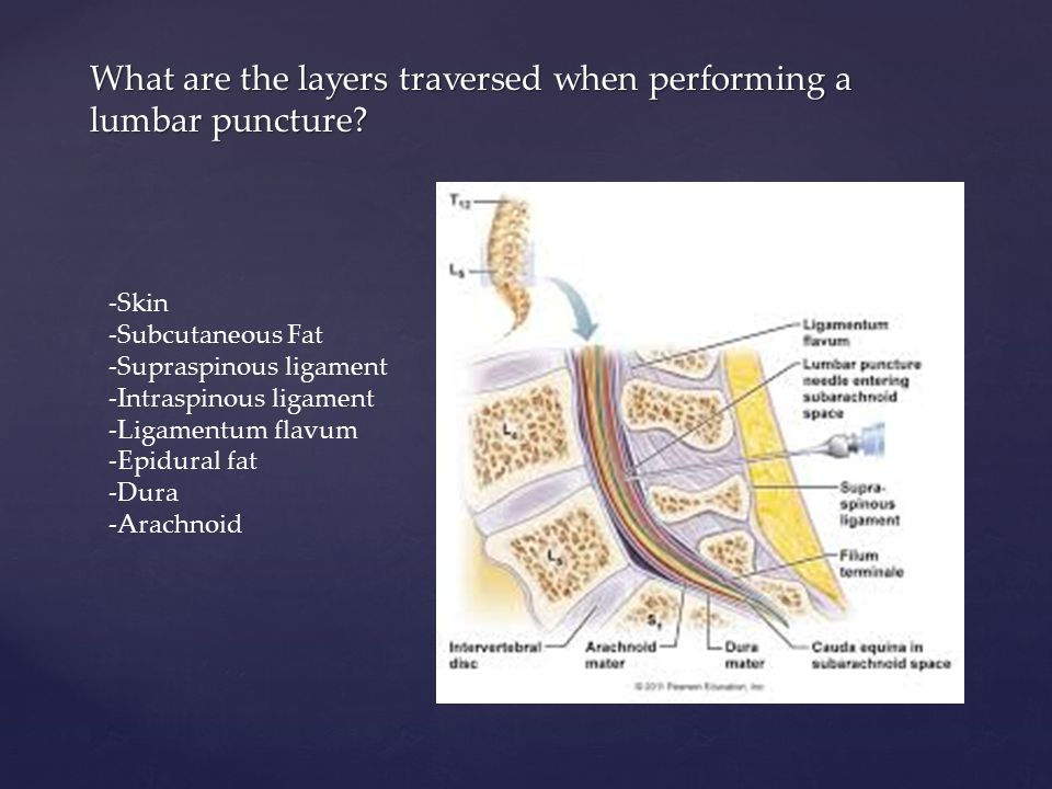 Magnificent Lumbar Puncture Anatomy Layers Embellishment - Anatomy ...