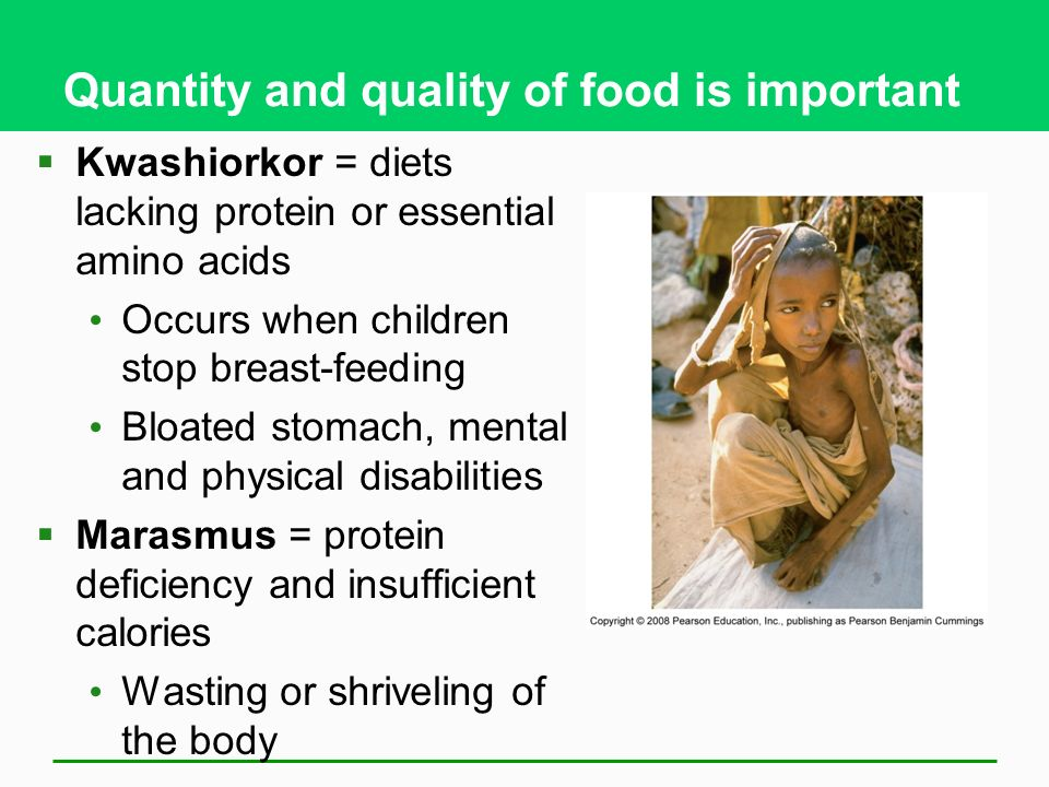 Quantity and quality of food is important  Kwashiorkor = diets lacking protein or essential amino acids Occurs when children stop breast-feeding Bloated stomach, mental and physical disabilities  Marasmus = protein deficiency and insufficient calories Wasting or shriveling of the body