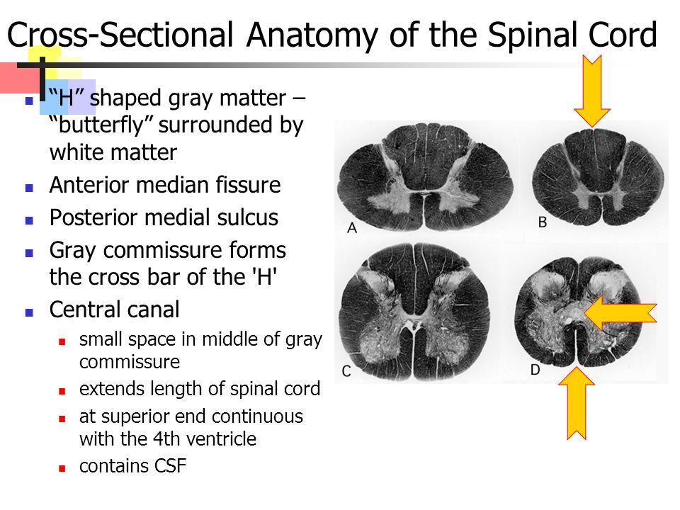 Cross-Sectional Anatomy of the Spinal Cord H shaped gray matter – butterfly surrounded by white matter Anterior median fissure Posterior medial sulcus Gray commissure forms the cross bar of the H Central canal small space in middle of gray commissure extends length of spinal cord at superior end continuous with the 4th ventricle contains CSF