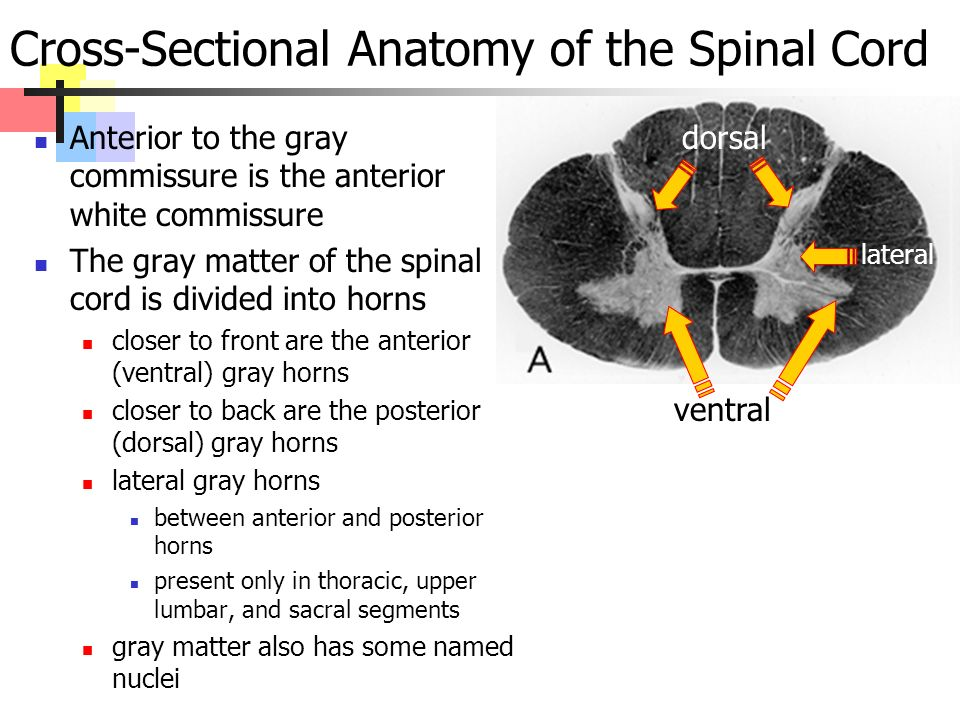 Cross-Sectional Anatomy of the Spinal Cord Anterior to the gray commissure is the anterior white commissure The gray matter of the spinal cord is divided into horns closer to front are the anterior (ventral) gray horns closer to back are the posterior (dorsal) gray horns lateral gray horns between anterior and posterior horns present only in thoracic, upper lumbar, and sacral segments gray matter also has some named nuclei dorsal lateral ventral