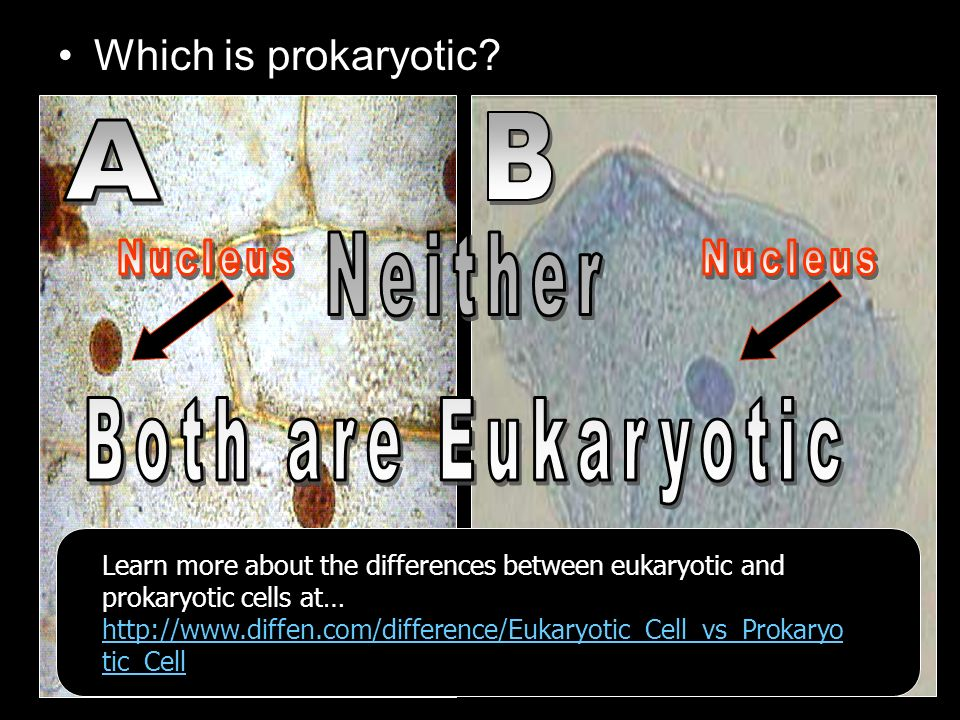 Learn more about the differences between eukaryotic and prokaryotic cells at… http://www.diffen.com/difference/Eukaryotic_Cell_vs_Prokaryo tic_Cell http://www.diffen.com/difference/Eukaryotic_Cell_vs_Prokaryo tic_Cell http://www.diffen.com/difference/Eukaryotic_Cell_vs_Prokaryo tic_Cell