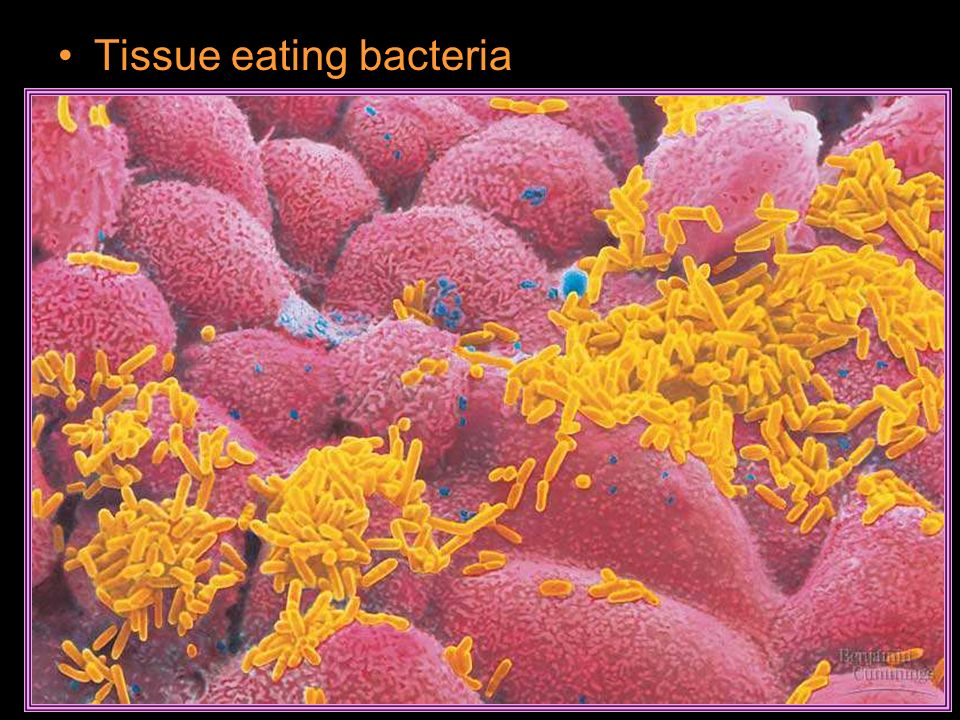 Tissue eating bacteria