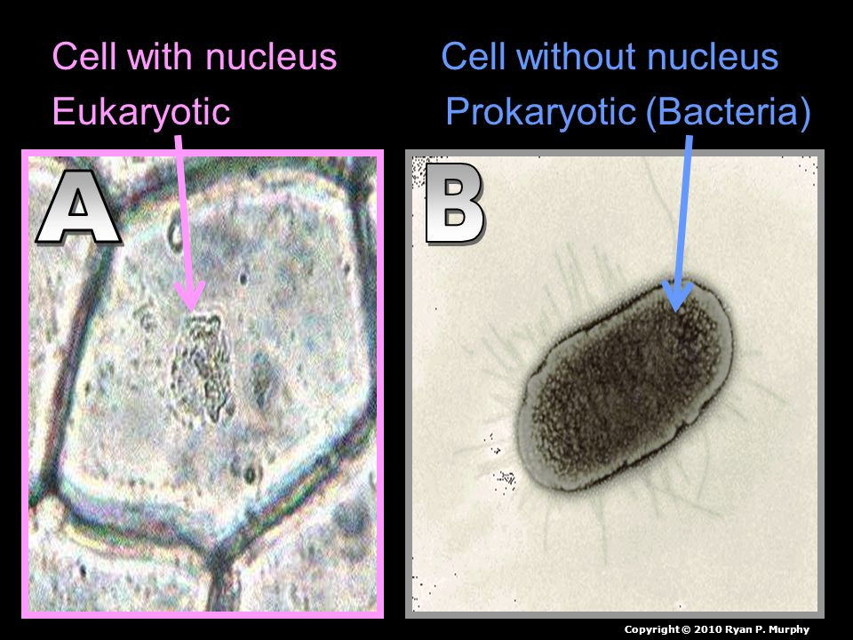 Cell with nucleus Cell without nucleus Eukaryotic Prokaryotic (Bacteria) Copyright © 2010 Ryan P.