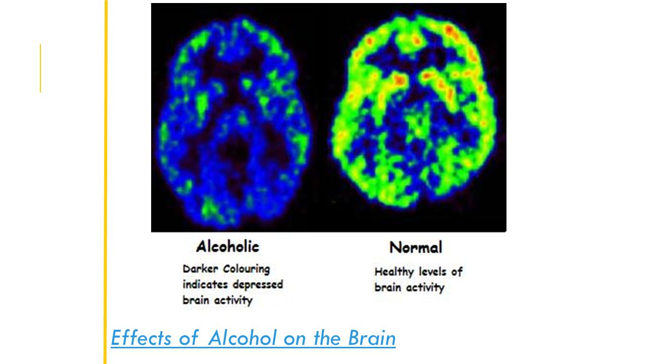 effects of alcohol on the brain research paper Researchers led by subhash c pandey, phd, professor of psychiatry and director of neuroscience alcoholism research at the university of illinois at chicago and a research career scientist at jesse brown veteran affairs medical center in chicago, investigated the effects of intermittent binge alcohol exposure during the adolescent stage of.