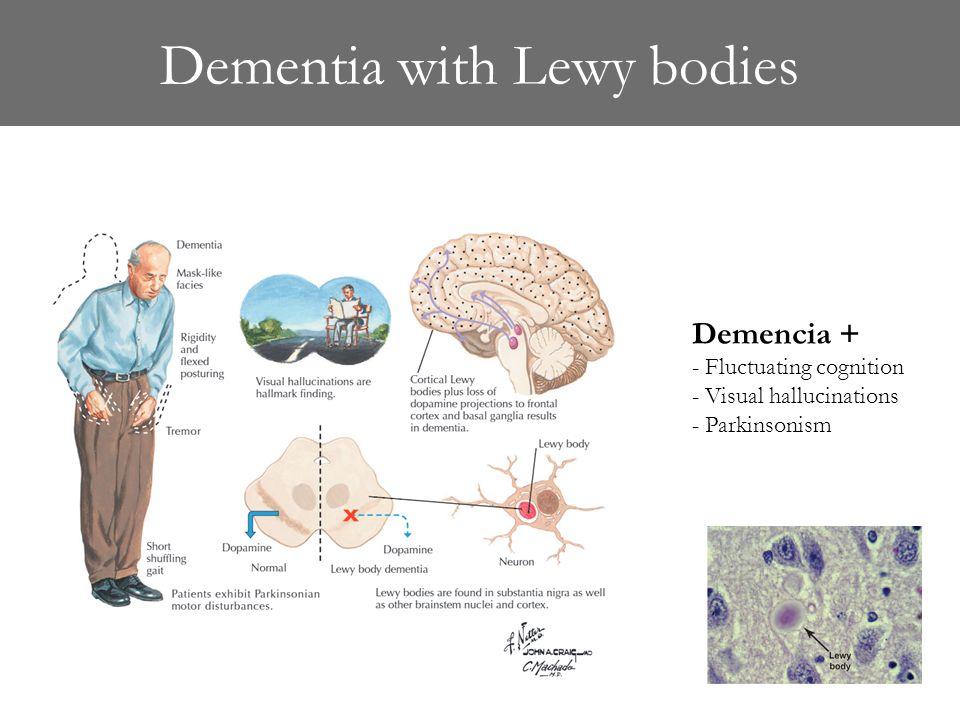 Lewys body dementia