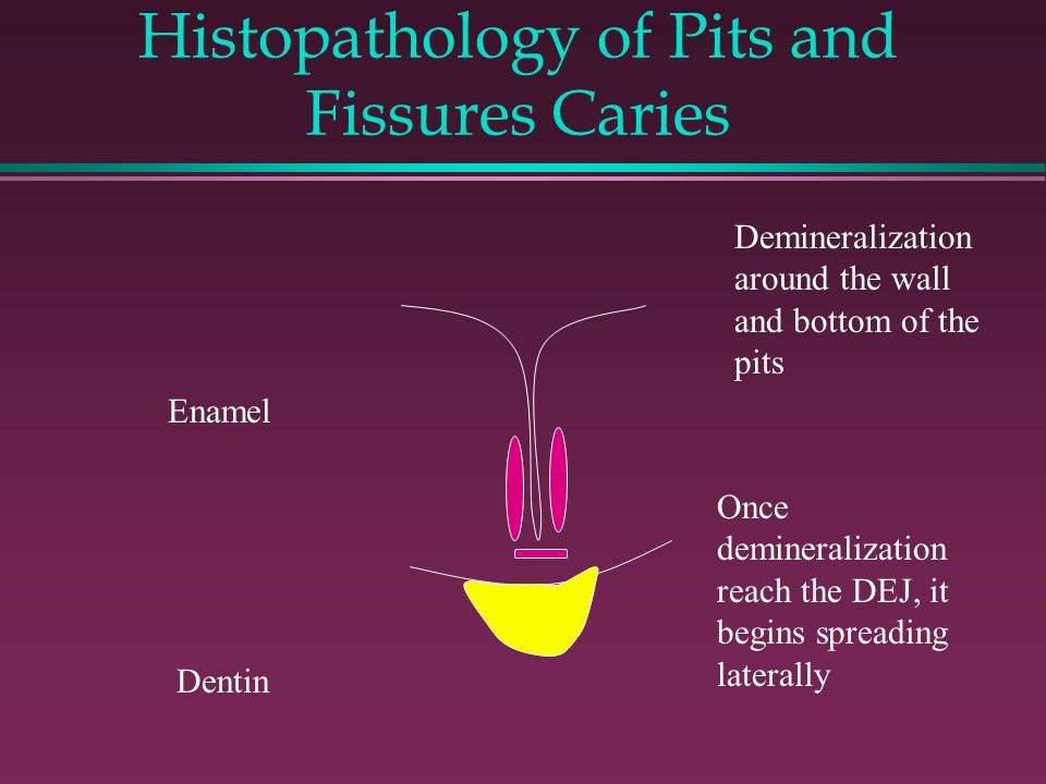 Histopathology of Pits and Fissures Caries Enamel Dentin Demineralization around the wall and bottom of the pits Once demineralization reach the DEJ, it begins spreading laterally