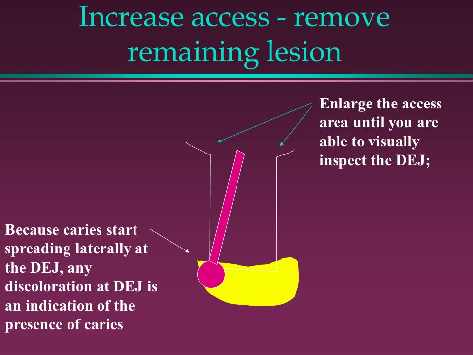 Increase access - remove remaining lesion Enlarge the access area until you are able to visually inspect the DEJ; Because caries start spreading laterally at the DEJ, any discoloration at DEJ is an indication of the presence of caries