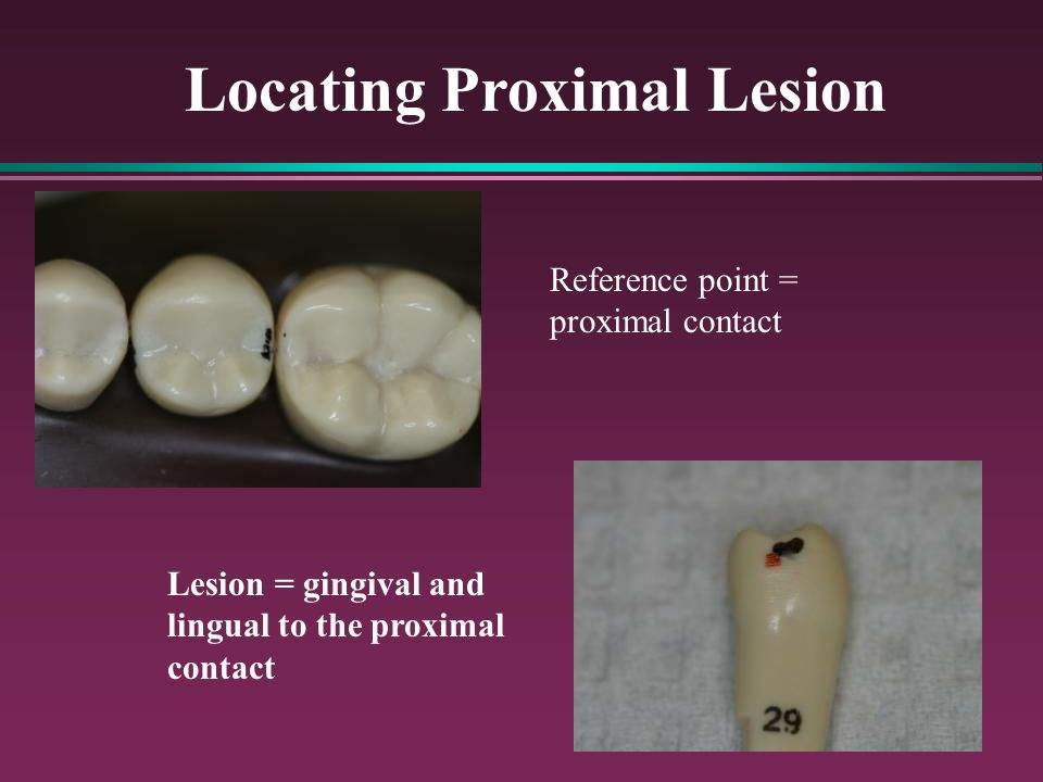 Locating Proximal Lesion Reference point = proximal contact Lesion = gingival and lingual to the proximal contact