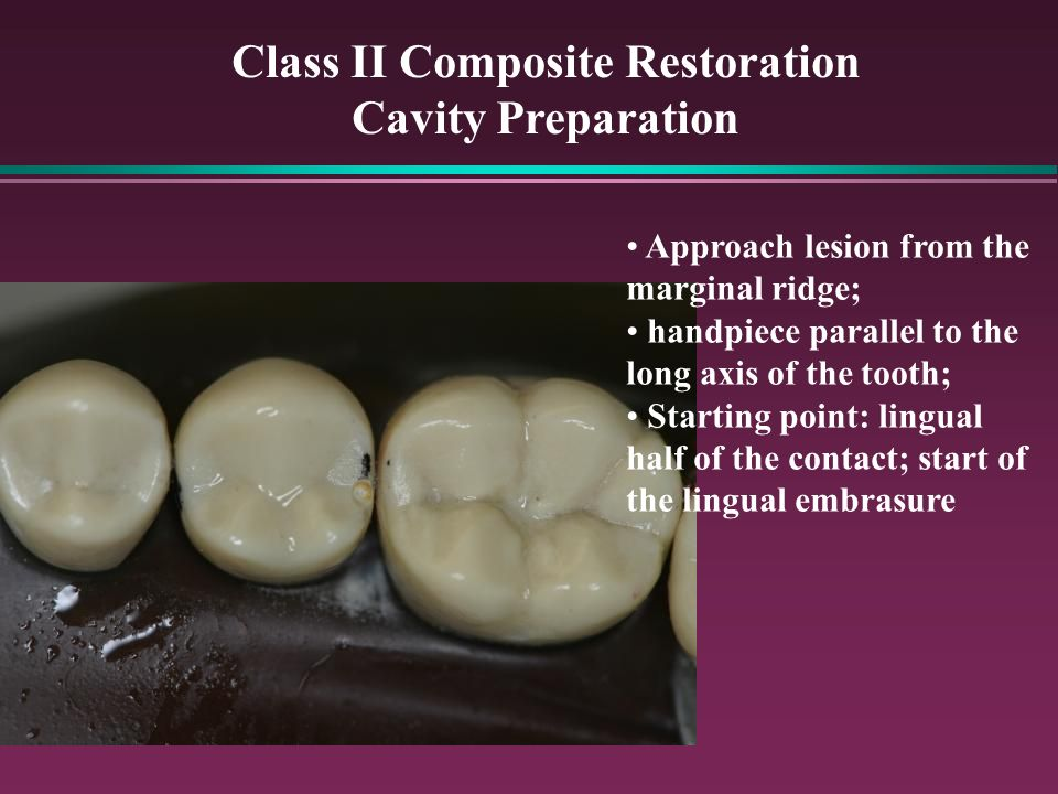 Class II Composite Restoration Cavity Preparation Approach lesion from the marginal ridge; handpiece parallel to the long axis of the tooth; Starting point: lingual half of the contact; start of the lingual embrasure