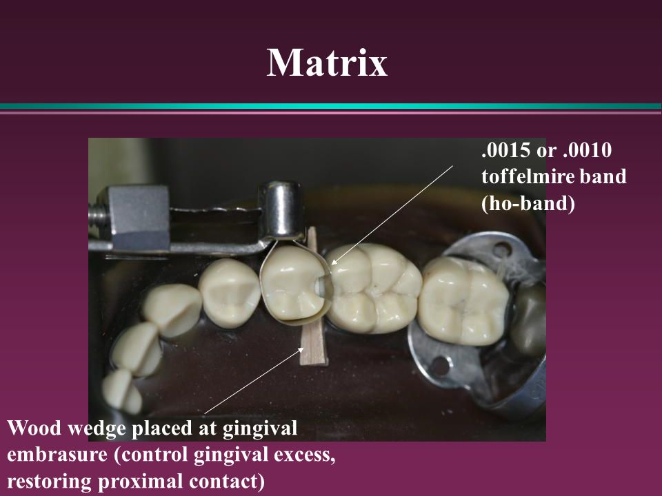 Matrix.0015 or.0010 toffelmire band (ho-band) Wood wedge placed at gingival embrasure (control gingival excess, restoring proximal contact)