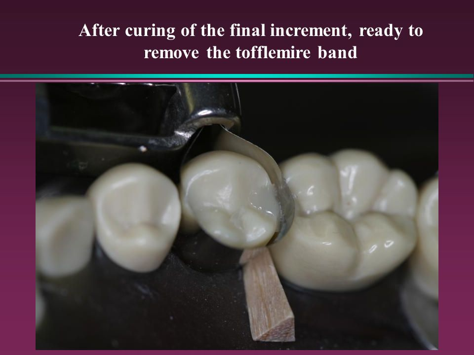 After curing of the final increment, ready to remove the tofflemire band