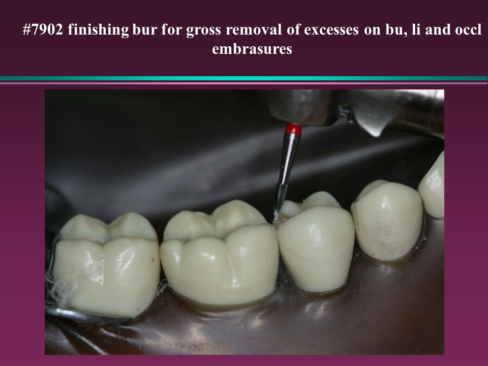 #7902 finishing bur for gross removal of excesses on bu, li and occl embrasures