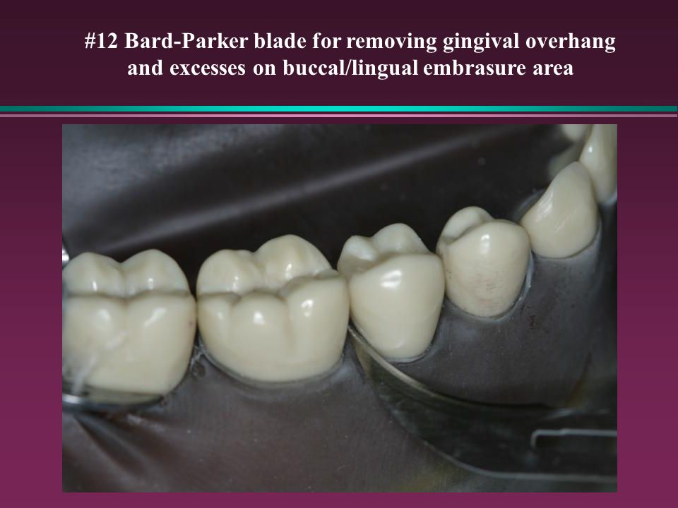 #12 Bard-Parker blade for removing gingival overhang and excesses on buccal/lingual embrasure area