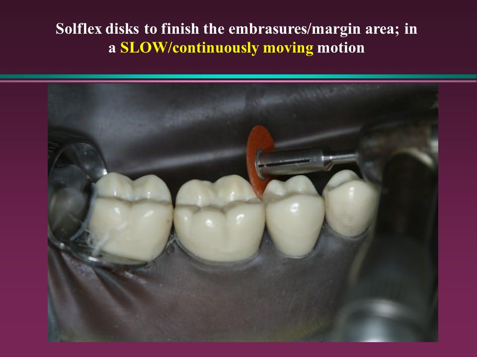 Solflex disks to finish the embrasures/margin area; in a SLOW/continuously moving motion