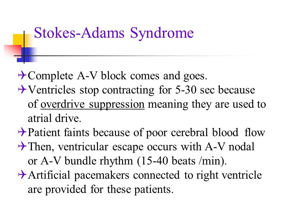 Синдром Адамса-Стокса