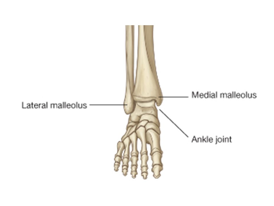 Lateral Malleolus Fracture - PhysioAdvisor