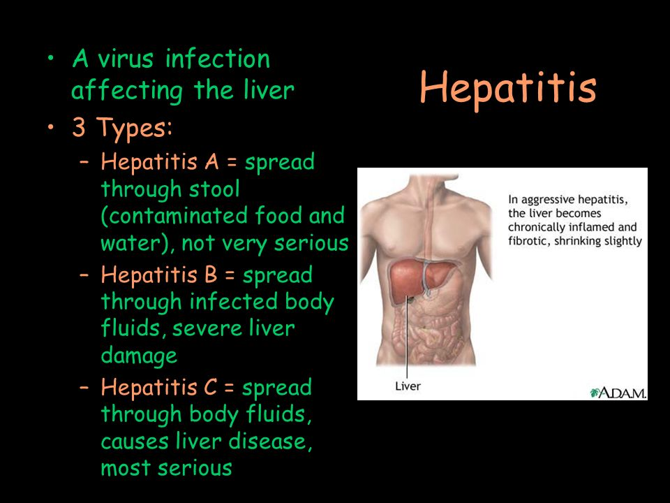 Can Synthroid Cause Liver Disease