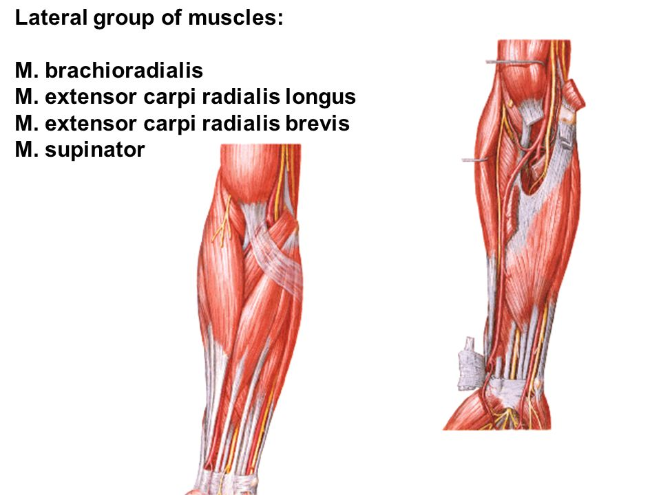 Lateral group of muscles: M. brachioradialis M. extensor carpi radialis longus M.
