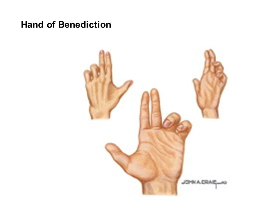 Hand of Benediction